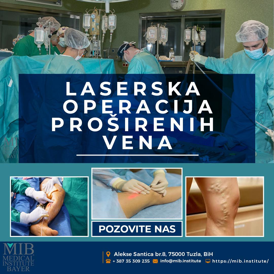 Laserski tretman proširenih vena